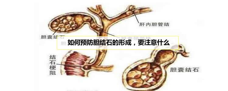 如何预防胆结石的形成,要注意什么