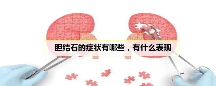 胆结石的症状有哪些,有什么表现
