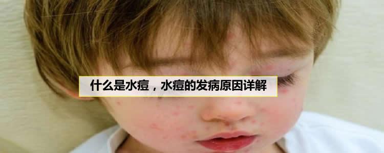 什么是水痘,水痘的发病原因详解
