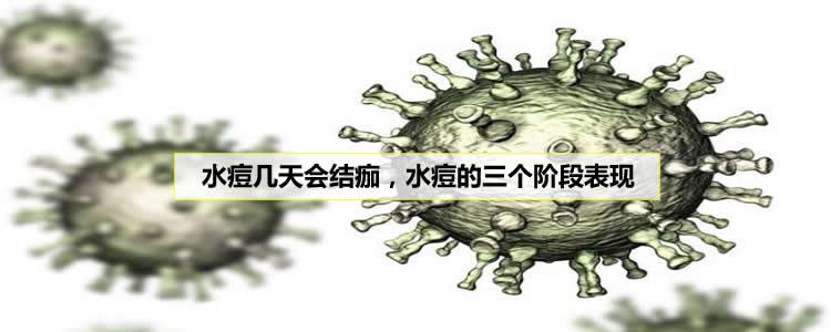 水痘几天会结痂,水痘的三个阶段表现