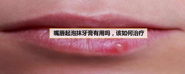 嘴唇起泡抹牙膏有用吗,该如何治疗