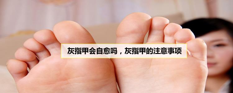 灰指甲会自愈吗,灰指甲的注意事项