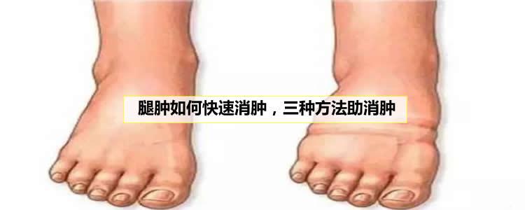 腿肿如何快速消肿,三种方法助消肿