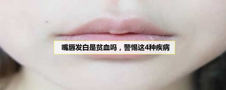 嘴唇发白是贫血吗,警惕这4种疾病