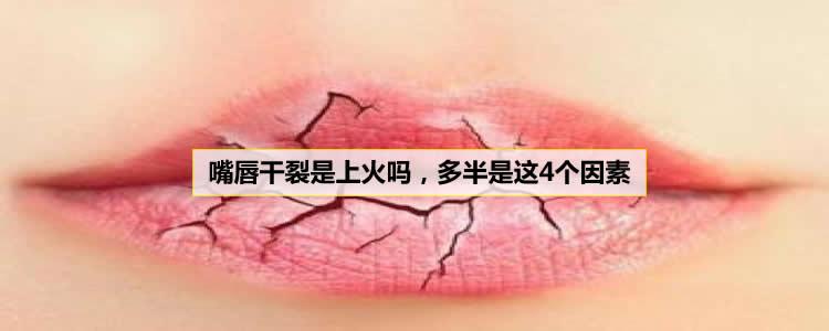 嘴唇干裂是上火吗,多半是这4个因素
