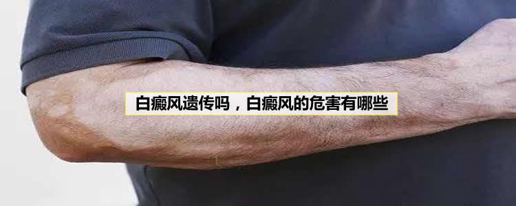 白癜风会遗传吗,白癜风的5大危害